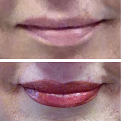 Permanent Lips Makeup Before and After