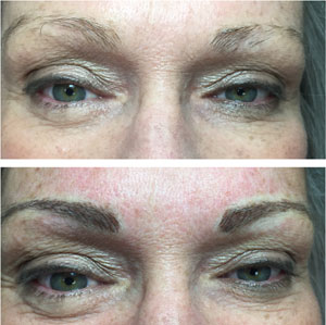 Before and After Permanent Brow Cosmetics