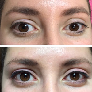 Permanent Eyeliner Makeup Before and After