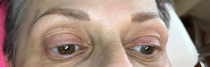 Persistent Cosmetic Tattoo Eyebrows