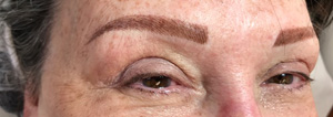 Cosmetic Tattoo Female Eyebrows
